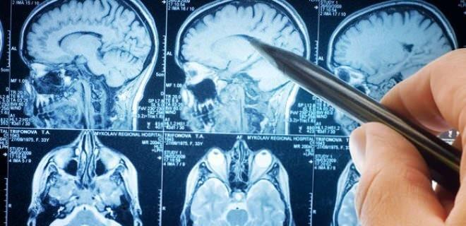beynin ön lobları hızla çalışır