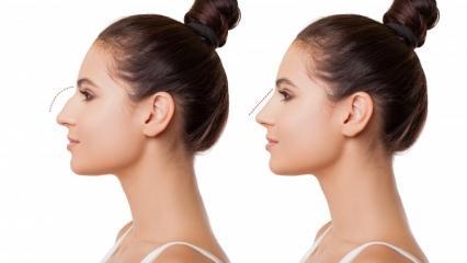 Burun ameliyatı (rinoplasti) nasıl yapılır? Burun estetiği ameliyatı hangi durumlarda yapılır?