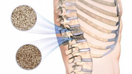 Kemik erimesi (Osteoporoz) nedir? Kemik erimesi belirtileri nelerdir ve tedavisi var mıdır?