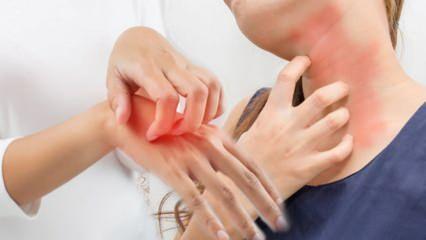 Kaşıntı neden olur? Kaşıntı hangi hastalıkların habercisidir? Kaşıntıya iyi gelen doğal yollar!