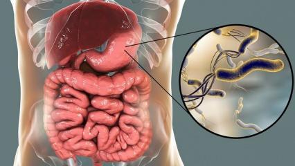 Helicobacter Pylori (Mide mikrobu) nedir? Helicobacter Pylorinin neden olduğu hastalıklar...