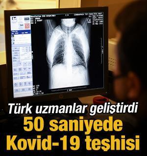 Yerli yapay zeka Kovid-19'u 50 saniyede tespit ediyor